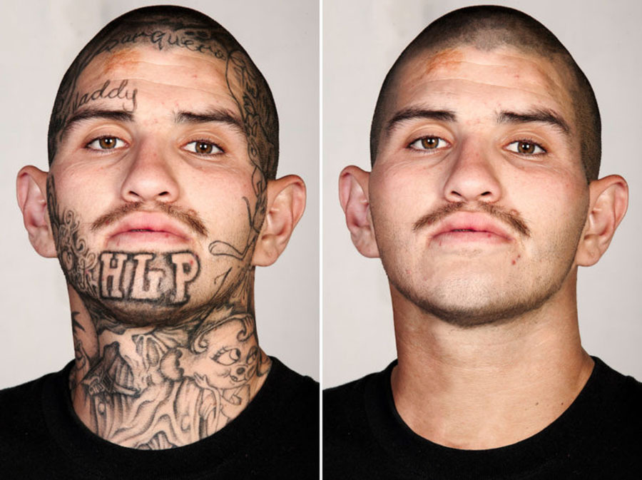Skin retouching tattoo removal for Gang face tattoos